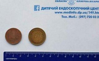 В Днепре ребенок проглотил две монеты - ФОТО