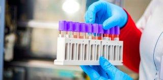На Днепропетровщине почти 1200 заболевших коронавирусом за сутки - ФОТО